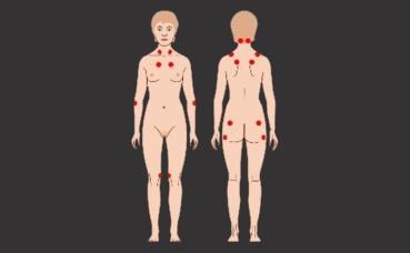 Fibromyalgie. Image du domaine public.