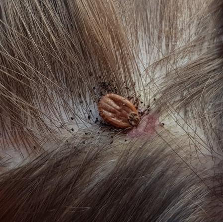 La tique Dermacentor s'installe parfois au niveau du cuir chevelu. Author provided