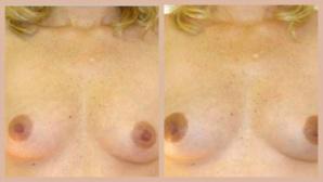 Le masque pour la peau sèche de la personne la blanchissante