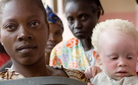 Une jeune femme tient dans ses bras son enfant atteint d'albinisme. Photo (c) Marie Frenchon / ONU