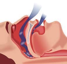 Schema de la ventilation dans la gorge lors de l'apnée du sommeil © Commons wiki