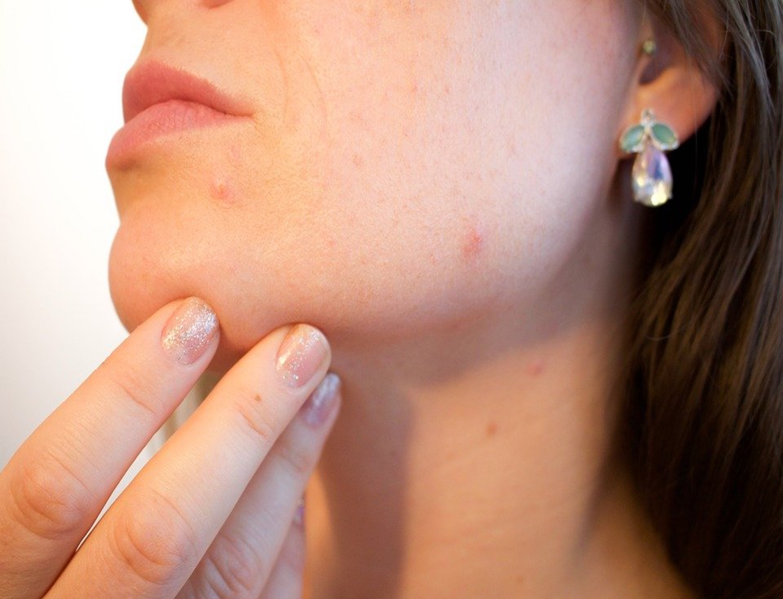 Pour l'utiliser dans le traitement d'une peau acnéique, il faut appliquer quelques gouttes le matin et le soir sur une peau propre et démaquillée (C) Kjerstin Michaela