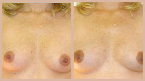 Modifications de la pigmentation durant la grossesse. Photo (c) Dr. Michael Hughey