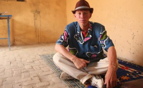 Albinisme: interview du Dr Banzoumana Traoré