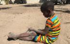"""""""La malnutrition constitue une menace silencieuse pour des millions d'enfants"""". Image du domaine publique."""