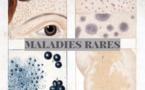 De nouveaux centres labellisés maladies rares