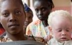 La chasse aux albinos