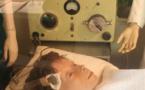 Taux de mortalité en psychiatrie 3 à 4 fois plus élevé qu'en population générale