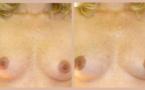 Modifications cutanées de la grossesse