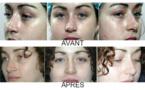 Modifier le nez sans chirurgie