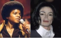 Changement physique radical de Michael Jackson (c) youtube Stop au blanchiment de la peau